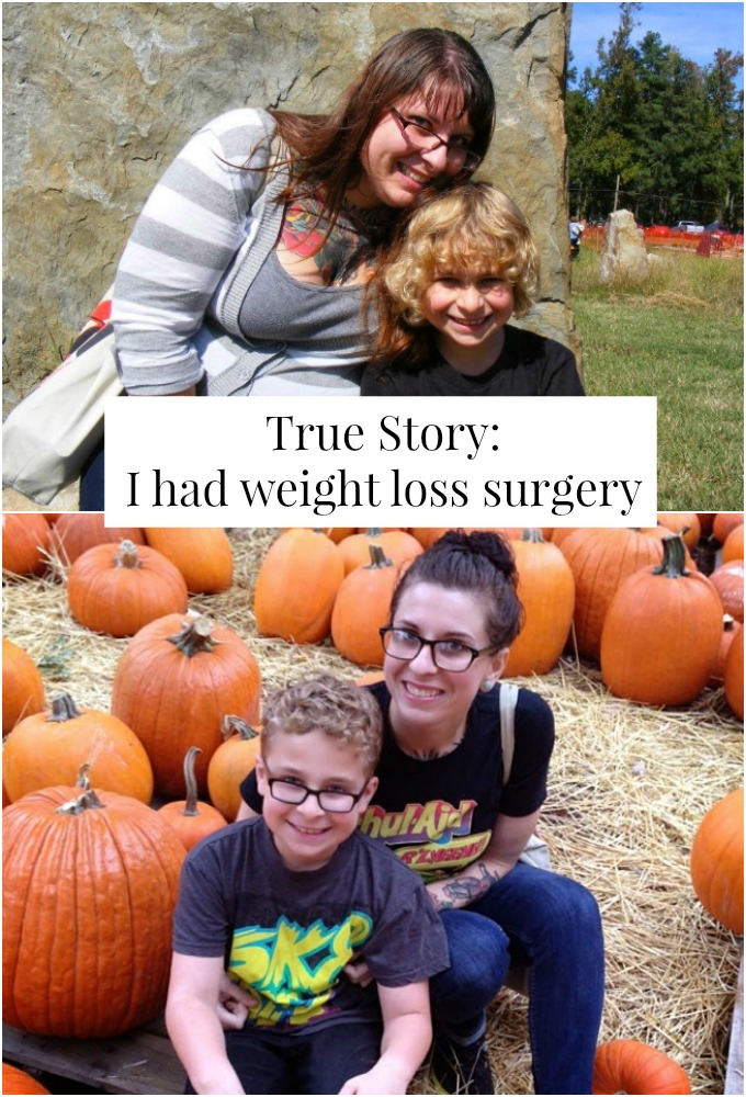 True Story I Had Weight Loss Surgery