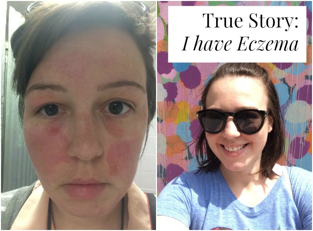 Are you struggling with eczema? One woman shares her story and the products that work with her sensitive skin and how she works through her flareups >> yesandyes.org